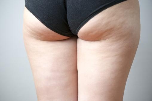 Fatty female hips